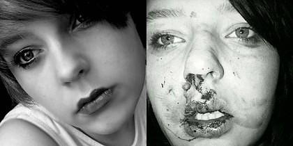 Sophie Russell mutilata