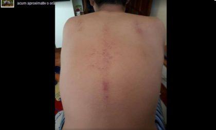 Tinerii sportivi ai Aradului SUFERĂ! Lipsa bazelor sportive şi a stadioanelor se lasă cu JULITURI şi VÂNĂTĂI