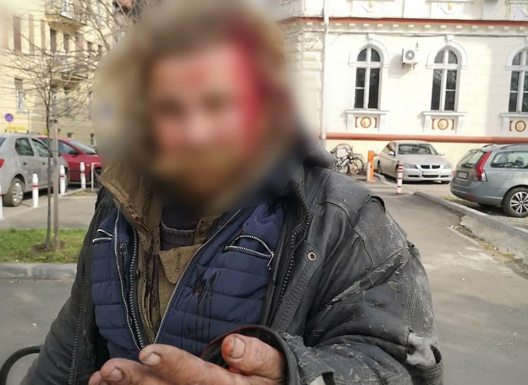 Un bărbat a fost BĂTUT cu un ciomag, în centrul Aradului. L-a salvat simțul civic al unui arădean